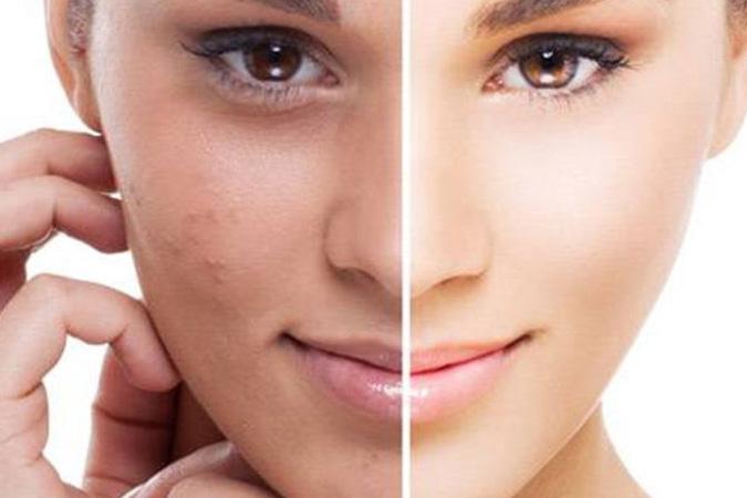 Zabieg kosmetologiczny na skórę Szczecin
